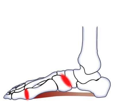 Artros knä hjälpmedel