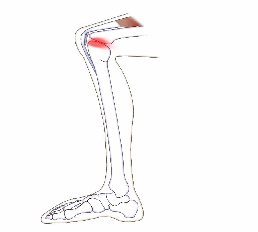 Artros i knäleden
