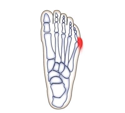 knöl på sidan av foten